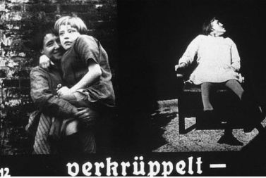 Propaganda slide featuring two images of physically disabled children